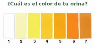 la orina dice mucho sobre tu salud tendras mucho cuidado With el color de la cera puede decir mucho sobre tu salud