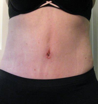 hernia after c section tummy tuck w hernia repair tummy tuck review realself