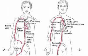 Angiogram  Cardiac Catheterization