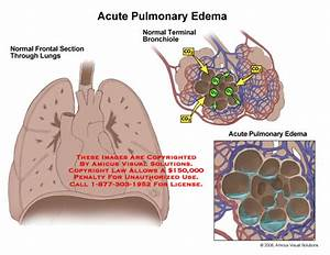 Edema And Related Medical Conditions  Cardiogenic Acute