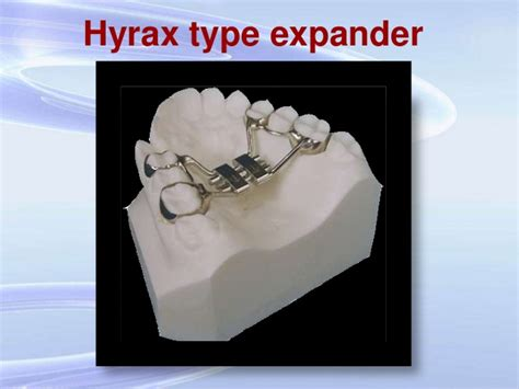 Expansion In Orthodontics,/certified Fixed Orthodontic