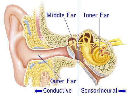 link  sensorineural hearing loss  aging