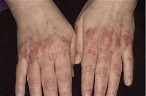 Гормональные уколы при псориазе