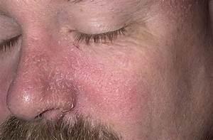 Псориаз фото симптомы и лечение у взрослых в домашних условиях