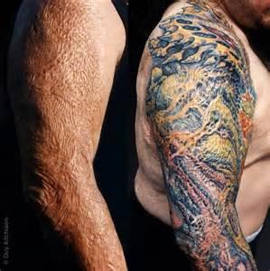 Tattoos On Burn Scars