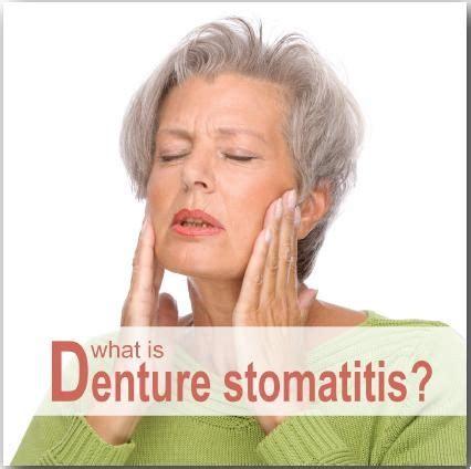 attribution  denture stomatitis dr nechupadam dental