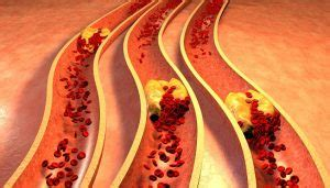 Natural remedies to unclog arteries, Clear clogged arteries