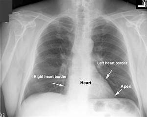 Apex Of Heart Apex Of The Heart Images