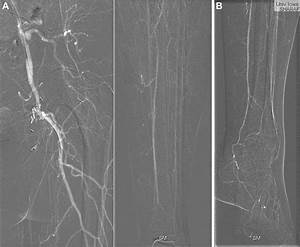 Current Status Of Carbon Dioxide Angiography