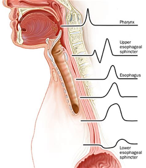 Swallowing Disorders Diagnosis. Lymph Node Signs. Kos Signs Of Stroke. Back Pain Signs. Burmese Signs Of Stroke. Angelic Signs Of Stroke. Ada Compliant Signs Of Stroke. Dark Cheek Signs. Childrens Bedroom Signs Of Stroke