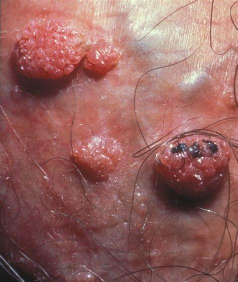 청주비뇨기과 바이러스성 성병 곤지름 콘딜로마 성기사마귀 네이버 블로그