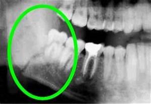 Broken Jaw Bone X Ray | www.pixshark.com - Images ...