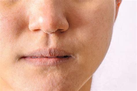 mascarilla  hidratar los labios secos