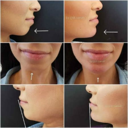 Chin Fillers - Derma Models
