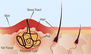 Pilonaidal Cyst Removal
