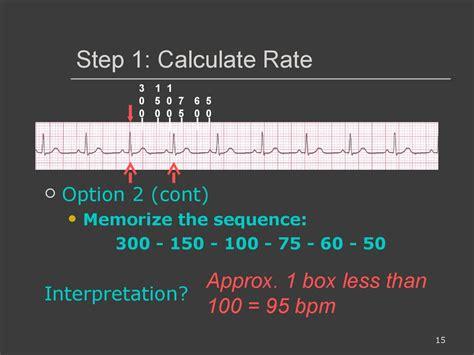 ecg interpretations   analyze  rhythm normal sinus rhythm heart arrhythmias diagnosing