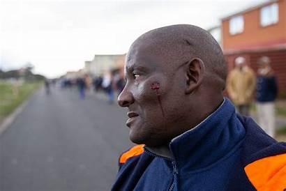 Parkwood Protest Rubber Face Shack Shot Erupts