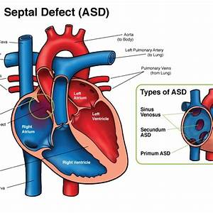 28 best Congenital Heart Disease images on Pinterest ...