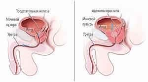 Народные средства при аденоме простаты у мужчин