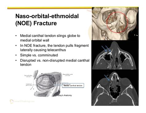 Orbital Floor Fracture Non Blowout by Imaging Of