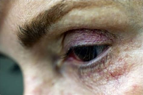 latisse eye color change side effects of latisse with 5 stories from real users