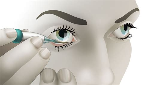 noviosenses  eye glucose monitor  work