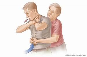 choking rescue procedure heimlich maneuver adult or child older than 1 year