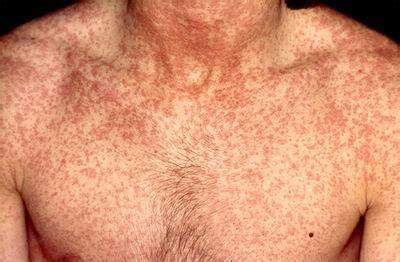 Wanita Hamil Flu Is My Life Share Sedikit Tentang Rubella