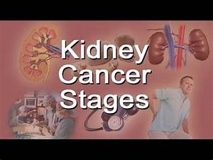 Kidney Cancer Stages - YouTube