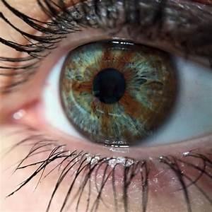 17 Best images about Heterochromia iridis on Pinterest ...