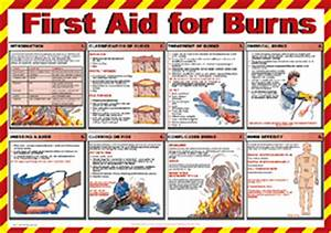 Labelsource: First Aid for Burns Treatment Guide Poster