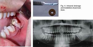Intraoral Drainage And Installation Of Penrose Drain