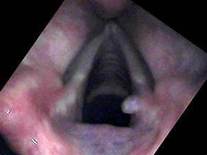 Granulomas Of The Vocal Cord
