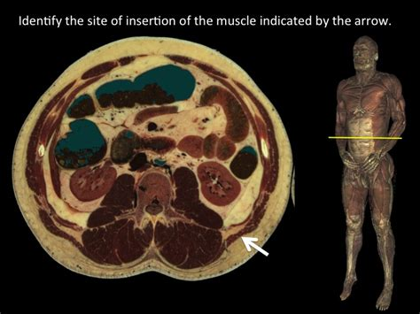 Tag Cross Sectional Ct Anatomy Of Neck Archives Human