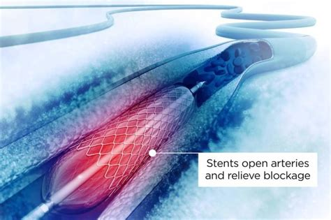What You Should Know Before Getting A Heart Stent Reader