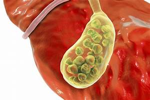 Gallbladder Inflammation Symptoms  Signs  Complications