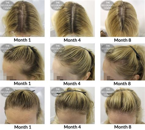 ?Can the DHT that Causes Male Hair Loss Also Affect Women?