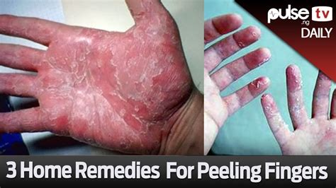 what causes your hands to peel