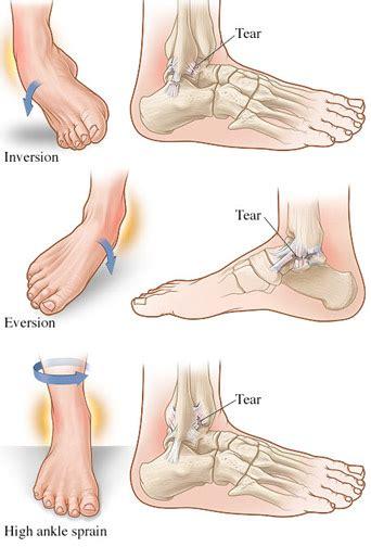 ankle sprains ensoccerpedia