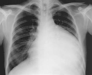 Pericarditis chest x ray - wikidoc