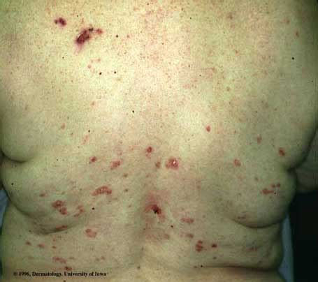 pemphigus foliaceus department  dermatology