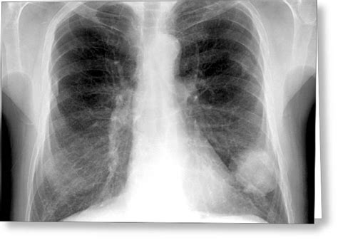 lung cancer medical cane imaging du ltd greeting card ray