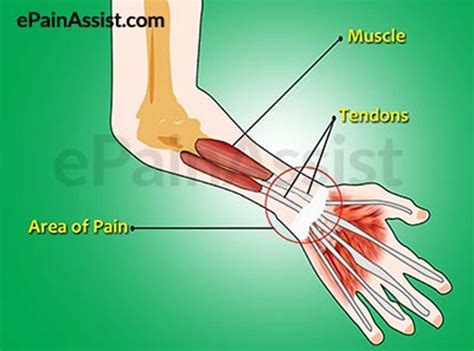 This is often the result of overuse, although it can also be caused by an acute injury. Wrist Joint Tendonitis|Causes|Symptoms|Treatment ...