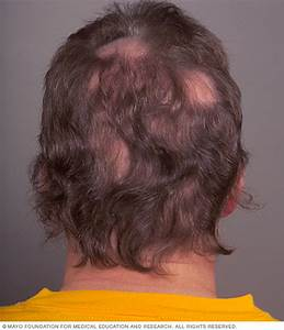 Hair Loss Disease Reference Guide