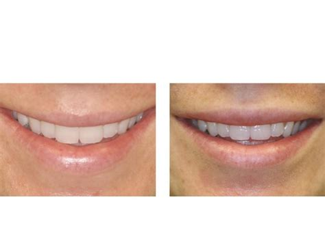 injectable fillers fort lauderdale