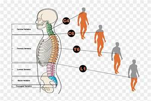 Diagram Showing Different Types Of Spinal Cord Injuries