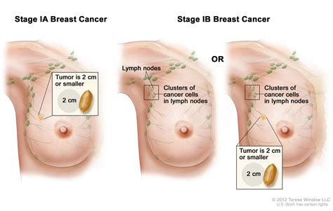 Breast Cancer Treatment Pdqpatient Version National