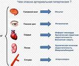Лечение гипертонии 1 степени
