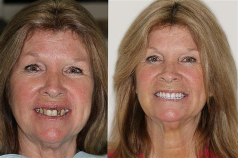 Smile Gallery  New Image Dental Implant Center  Dr Neil