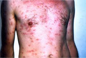 Syphilis - secondary. Causes, symptoms, treatment Syphilis - secondary Syphilis - primary